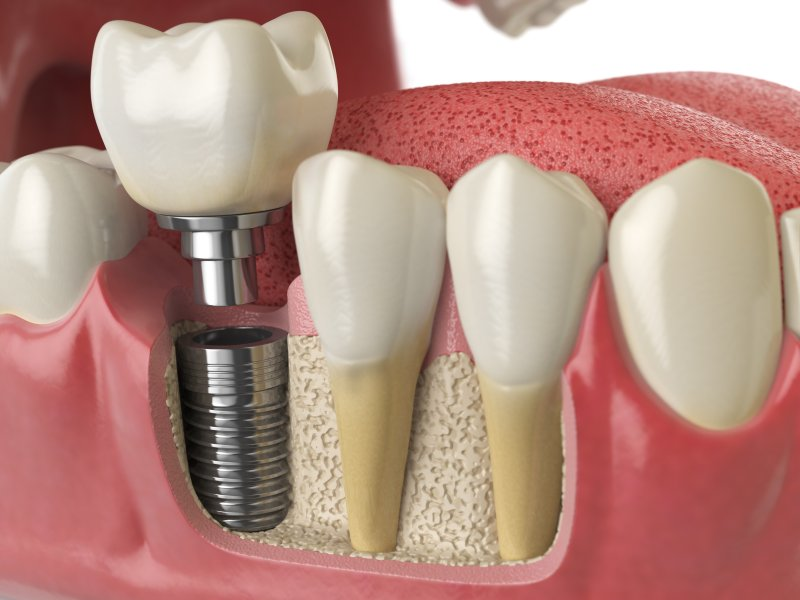 Illustration of dental implants in Mount Vernon